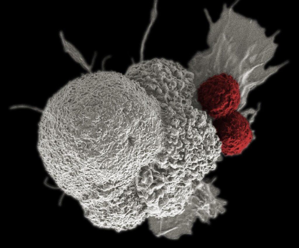 daganat immunterapia cl