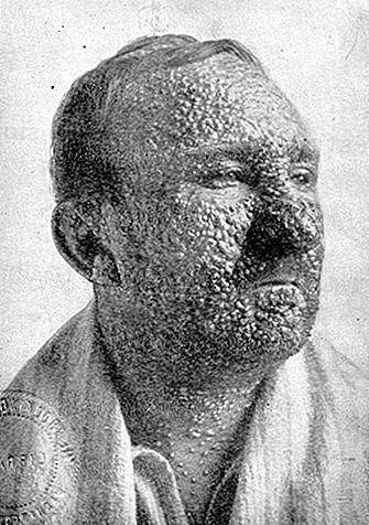 the eradication of smallpox 1